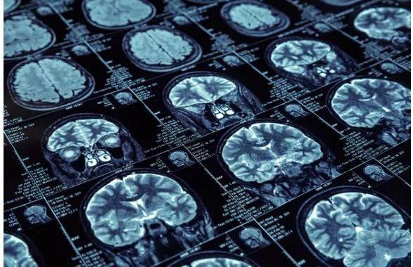Os Truques Da Neurociência Para Se Tornar Um Profissional Melhor